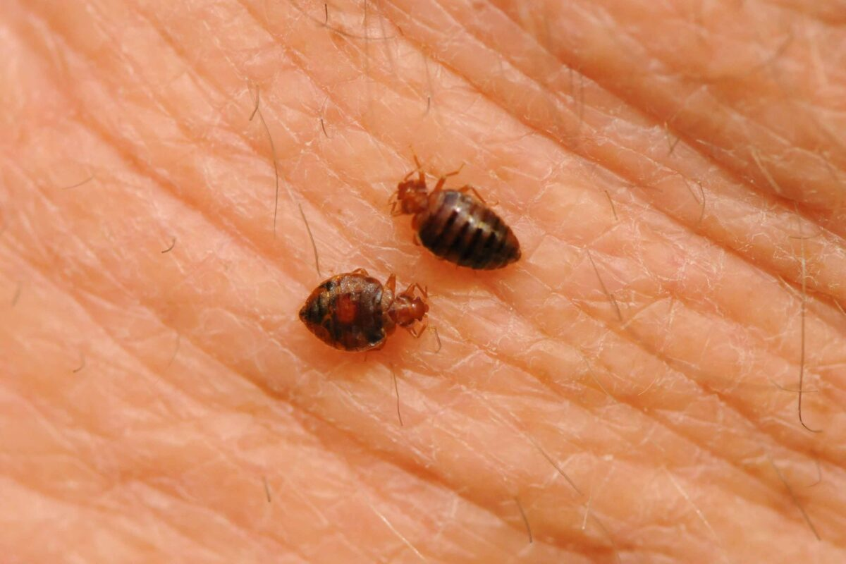Bed Bug Bites Pictures, Symptoms and Treatment Pictures of bed bug bites on a black person
